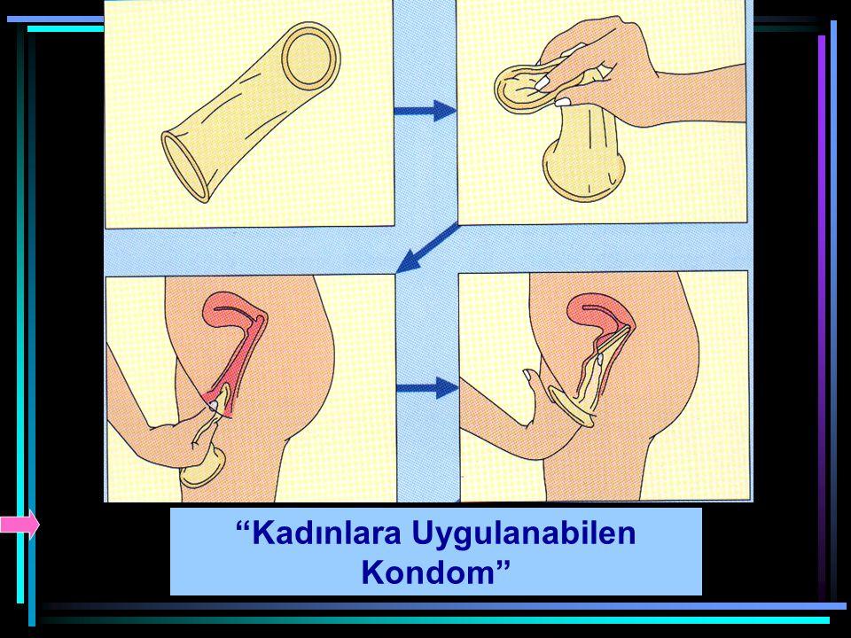 Kadınlara Uygulanabilen Kondom