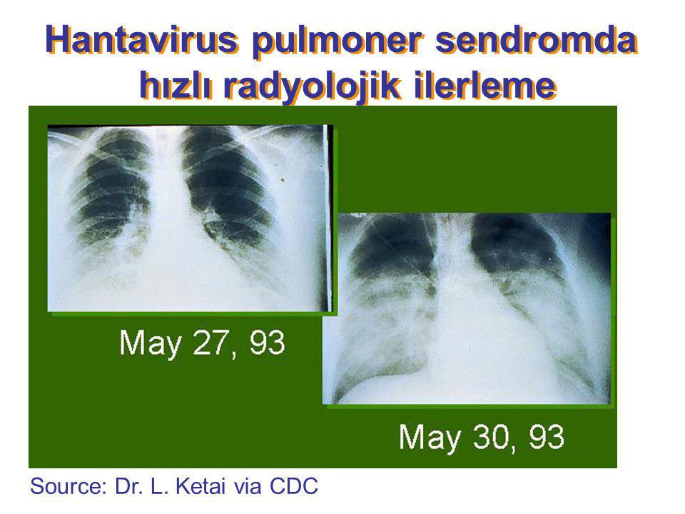 Hantavirus pulmoner sendromda hızlı radyolojik ilerleme