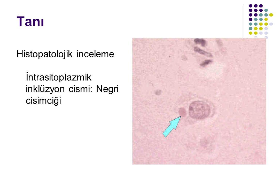 Tanı Histopatolojik inceleme