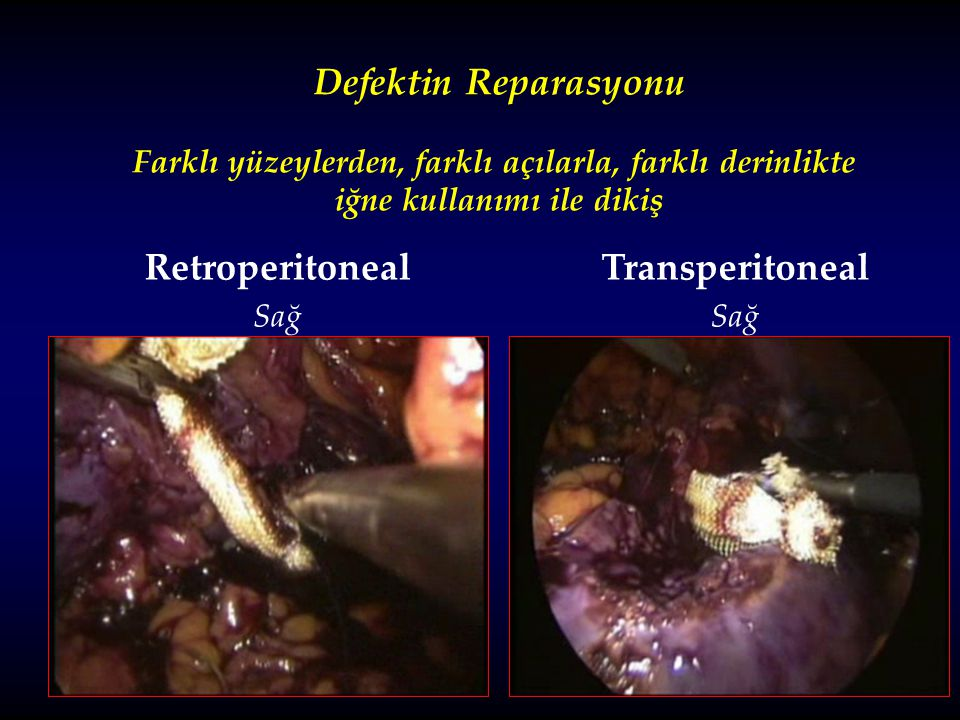 Defektin Reparasyonu Retroperitoneal Transperitoneal