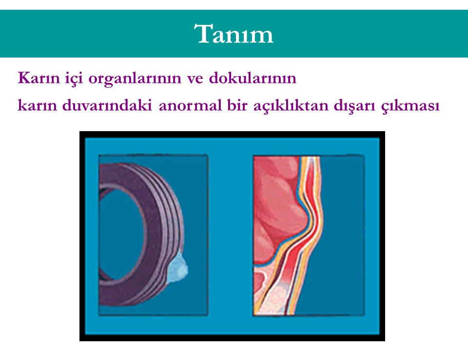 Tanım Karın içi organlarının ve dokularının
