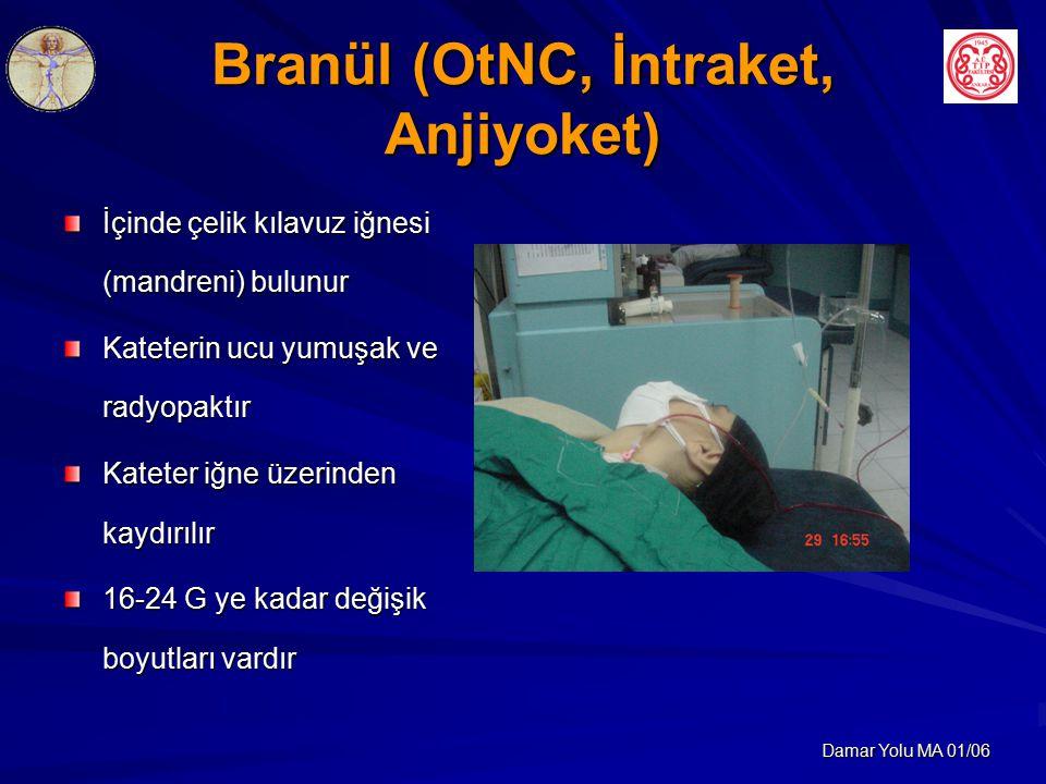 Branül (OtNC, İntraket, Anjiyoket)
