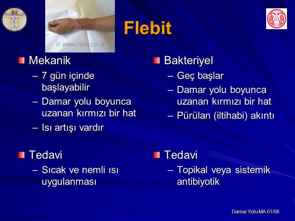 Flebit Mekanik Tedavi Bakteriyel Tedavi 7 gün içinde başlayabilir