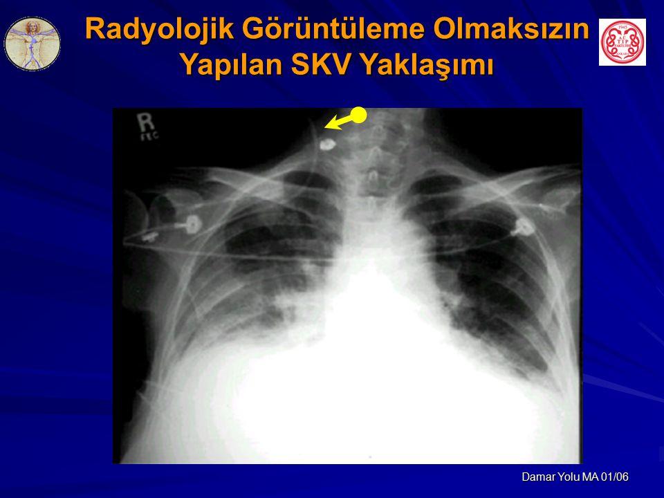 Radyolojik Görüntüleme Olmaksızın