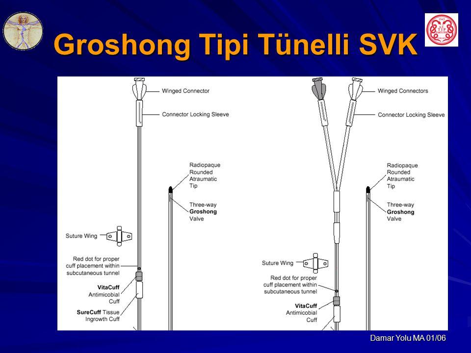 Groshong Tipi Tünelli SVK