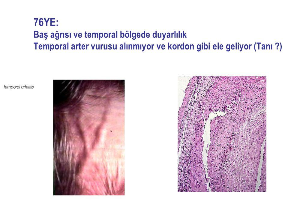 76YE: Baş ağrısı ve temporal bölgede duyarlılık Temporal arter vurusu alınmıyor ve kordon gibi ele geliyor (Tanı )