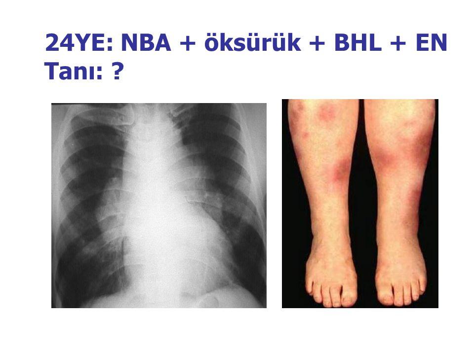 24YE: NBA + öksürük + BHL + EN Tanı: