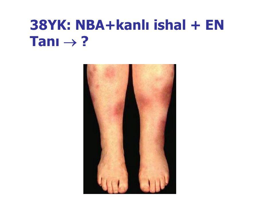 38YK: NBA+kanlı ishal + EN Tanı 