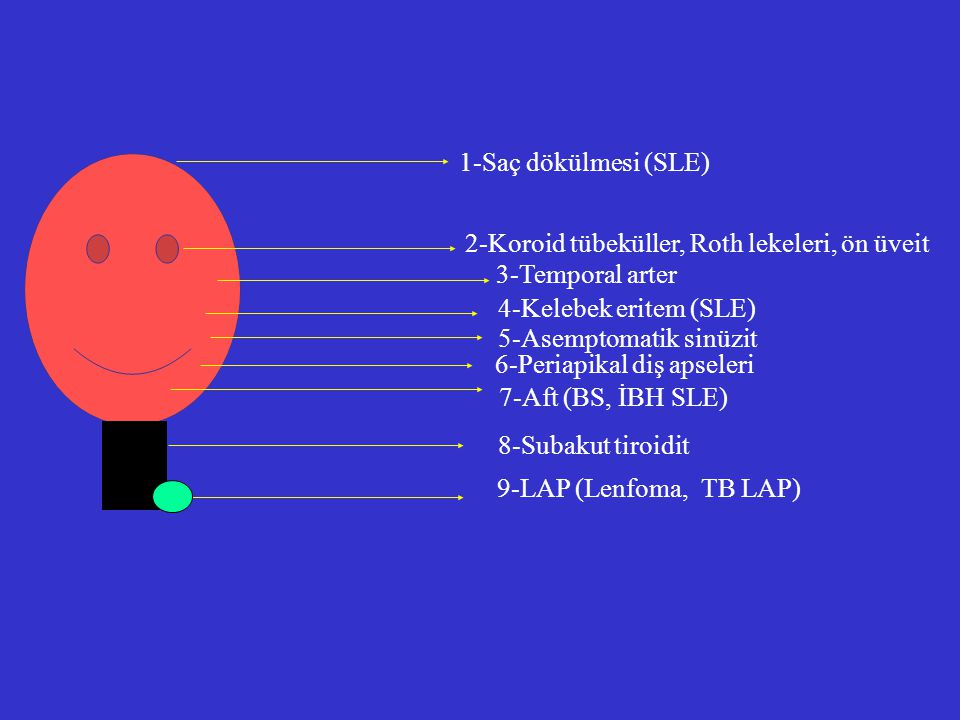 1-Saç dökülmesi (SLE) 2-Koroid tübeküller, Roth lekeleri, ön üveit. 3-Temporal arter. 4-Kelebek eritem (SLE)