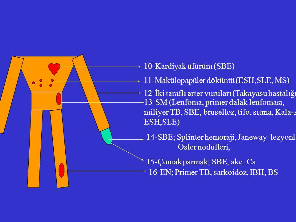 10-Kardiyak üfürüm (SBE)