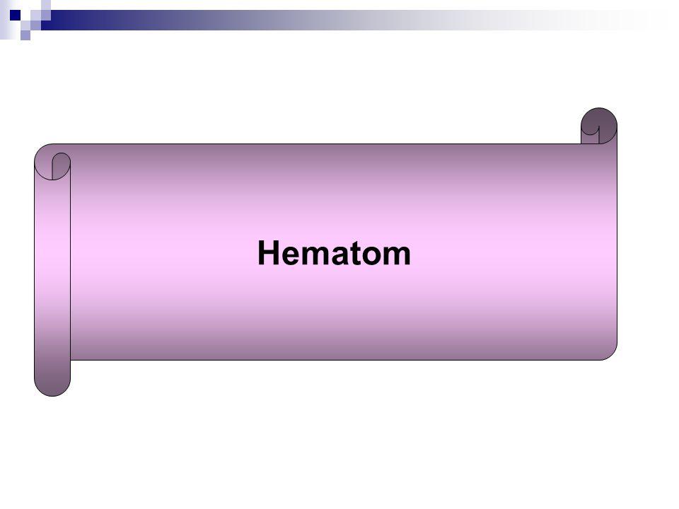 Hematom