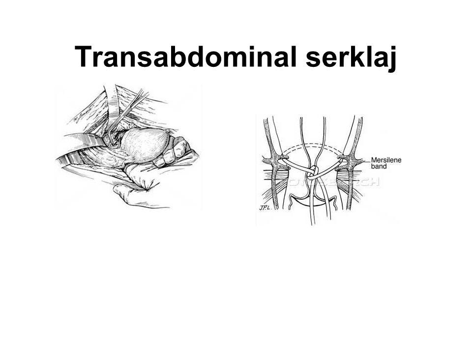 Transabdominal serklaj