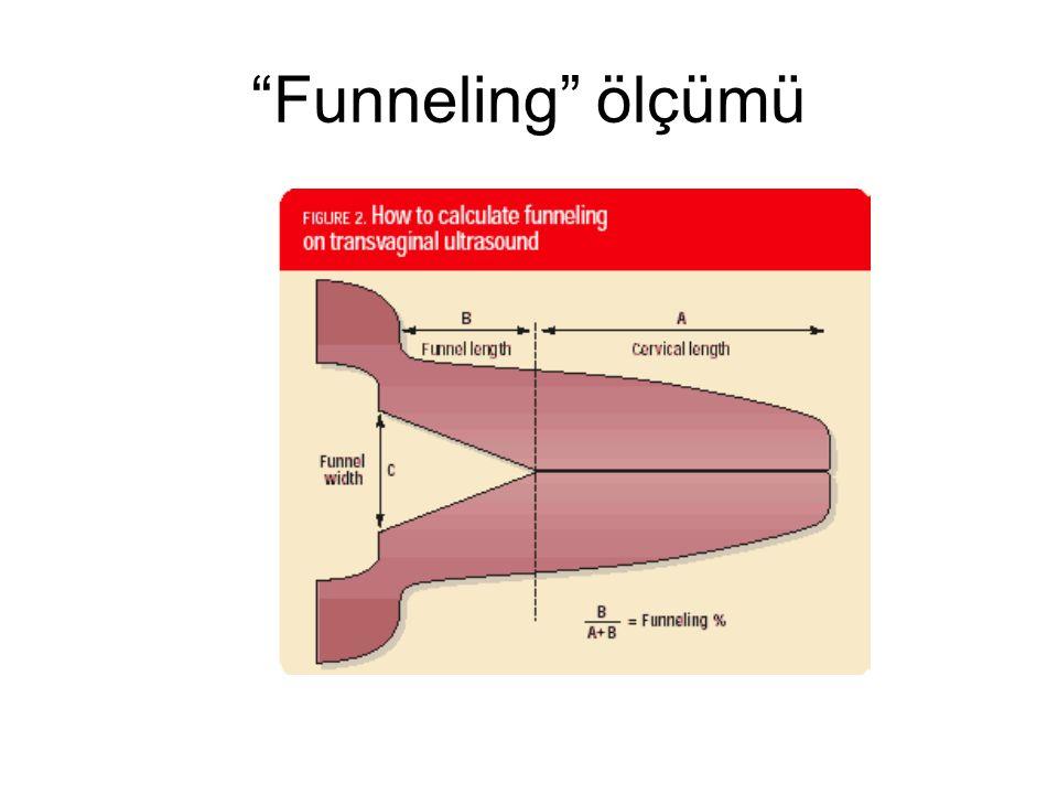 Funneling ölçümü