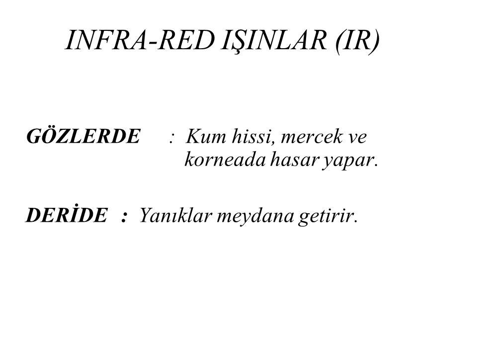 INFRA-RED IŞINLAR (IR)