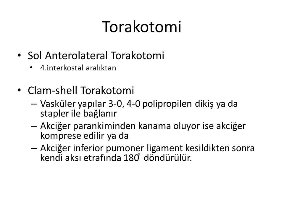 Torakotomi Sol Anterolateral Torakotomi Clam-shell Torakotomi