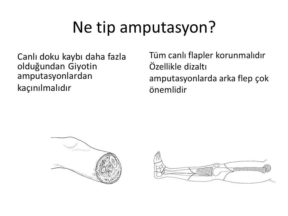 Ne tip amputasyon Tüm canlı flapler korunmalıdır Özellikle dizaltı amputasyonlarda arka flep çok önemlidir.