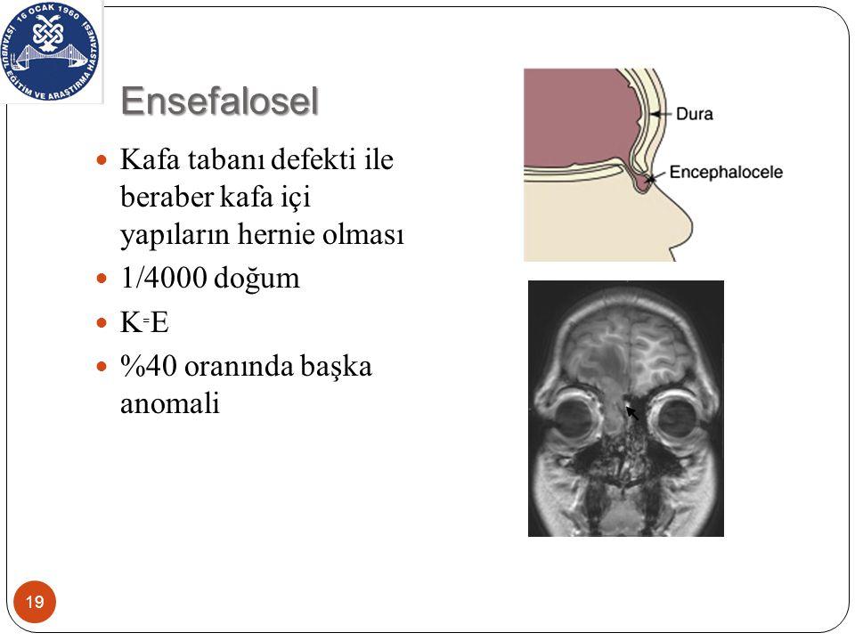 Ensefalosel Kafa tabanı defekti ile beraber kafa içi yapıların hernie olması. 1/4000 doğum. K₌E.