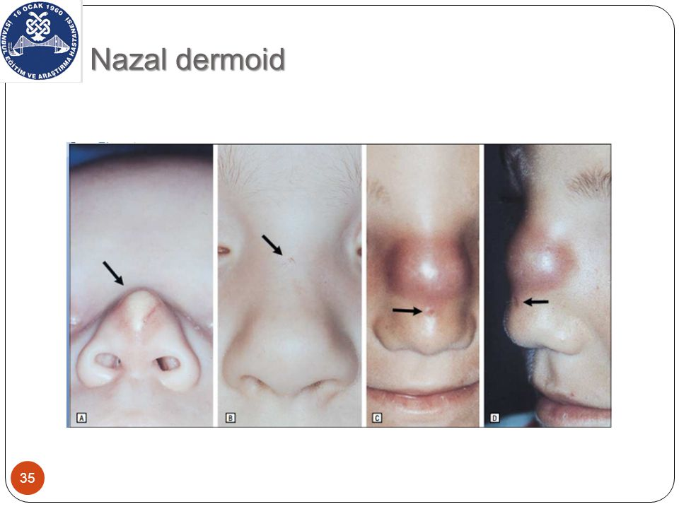 Nazal dermoid