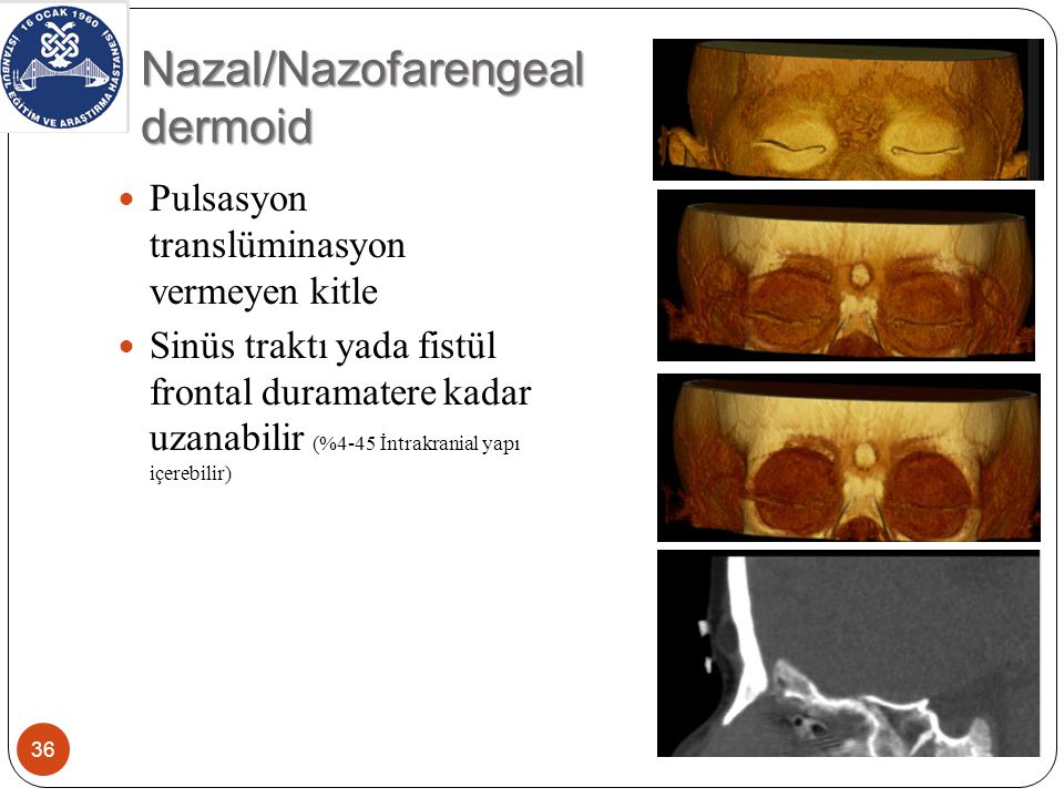Nazal/Nazofarengeal dermoid