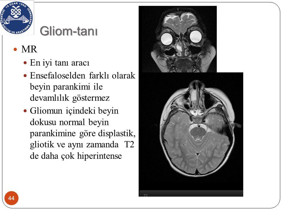 Gliom-tanı MR En iyi tanı aracı