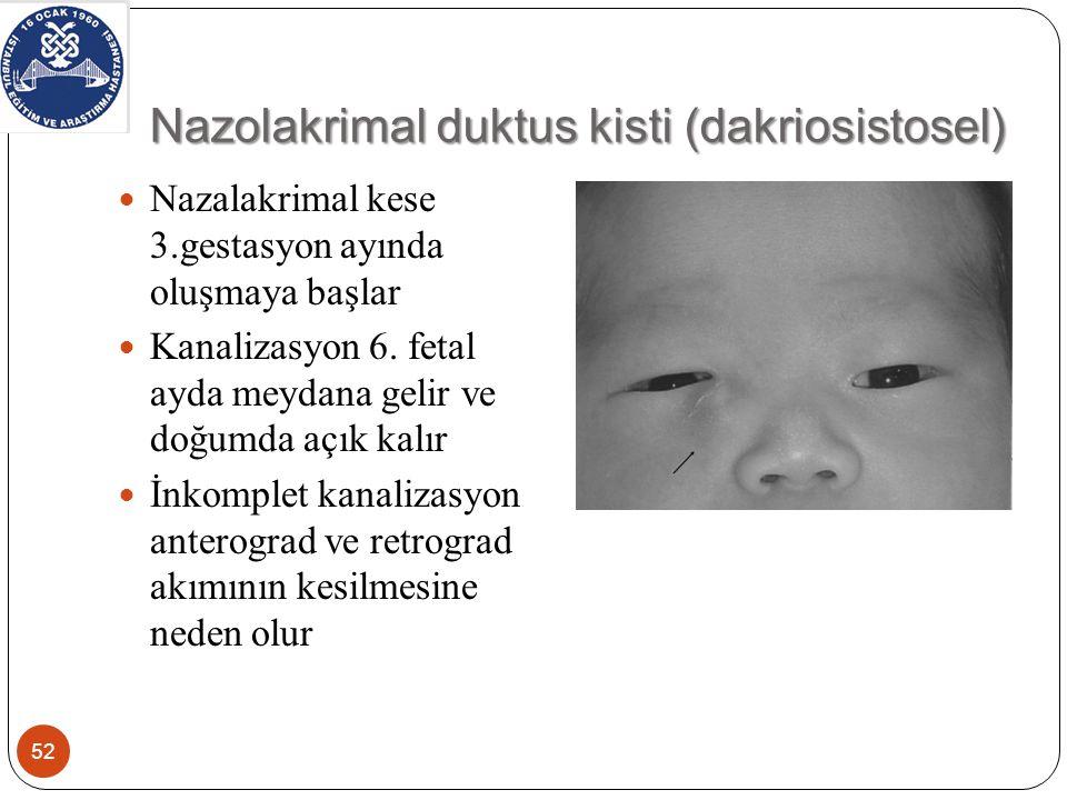 Nazolakrimal duktus kisti (dakriosistosel)