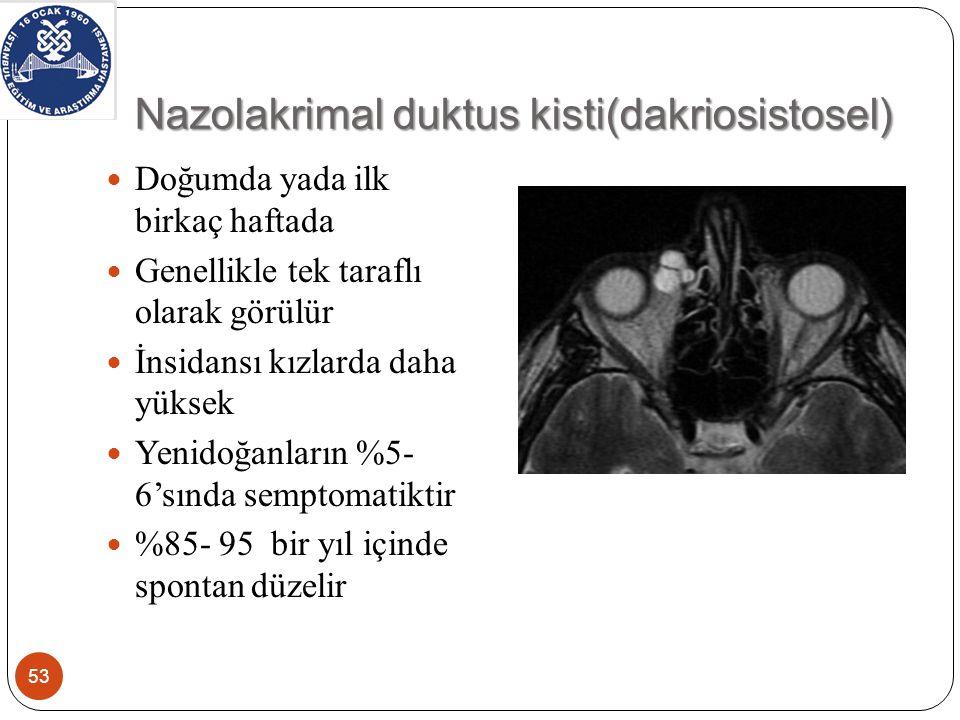 Nazolakrimal duktus kisti(dakriosistosel)