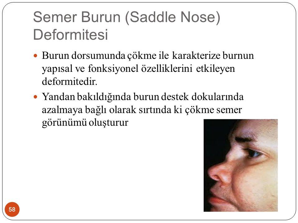 Semer Burun (Saddle Nose) Deformitesi