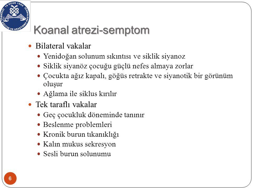 Koanal atrezi-semptom