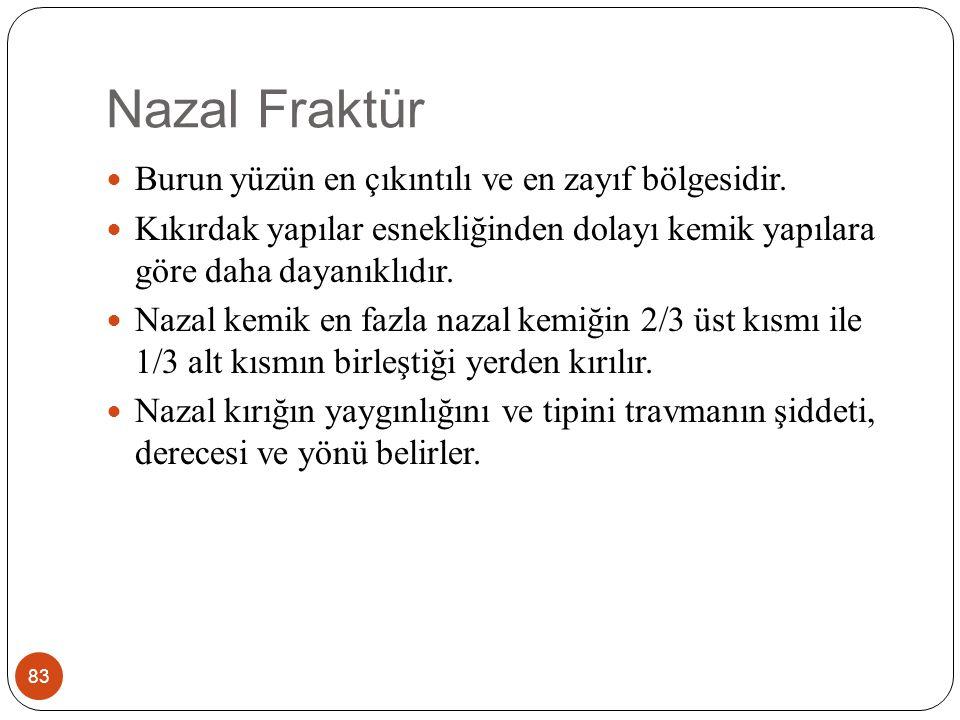 Nazal Fraktür Burun yüzün en çıkıntılı ve en zayıf bölgesidir.