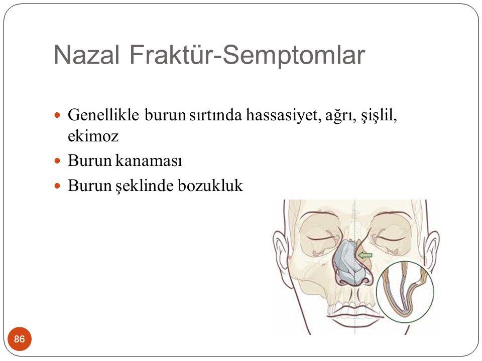Nazal Fraktür-Semptomlar