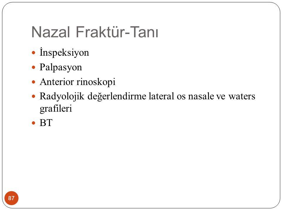 Nazal Fraktür-Tanı İnspeksiyon Palpasyon Anterior rinoskopi