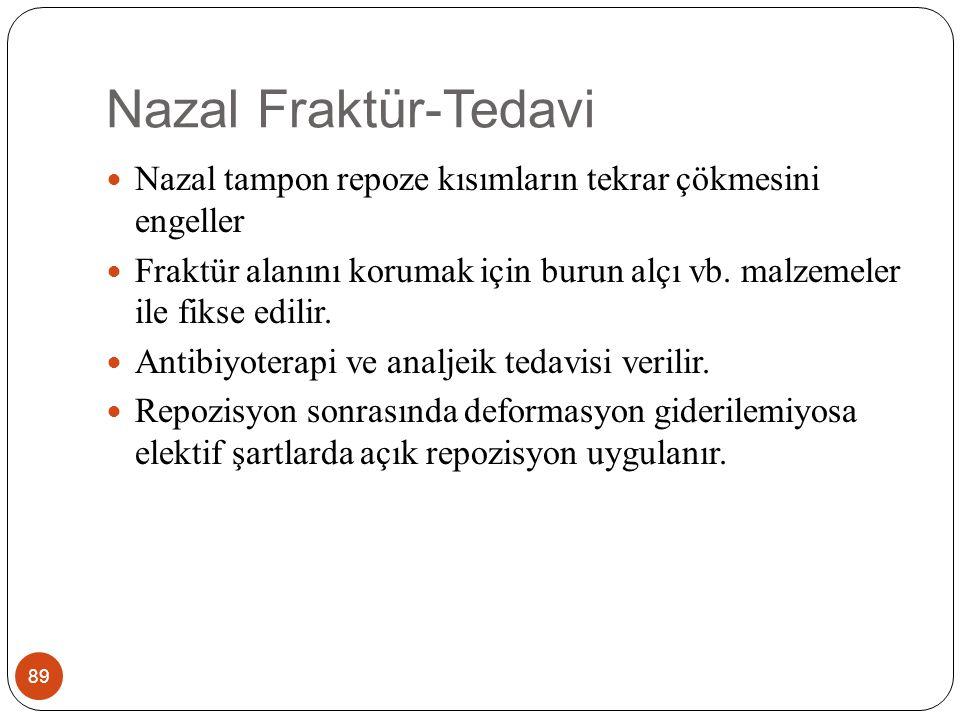 Nazal Fraktür-Tedavi Nazal tampon repoze kısımların tekrar çökmesini engeller.