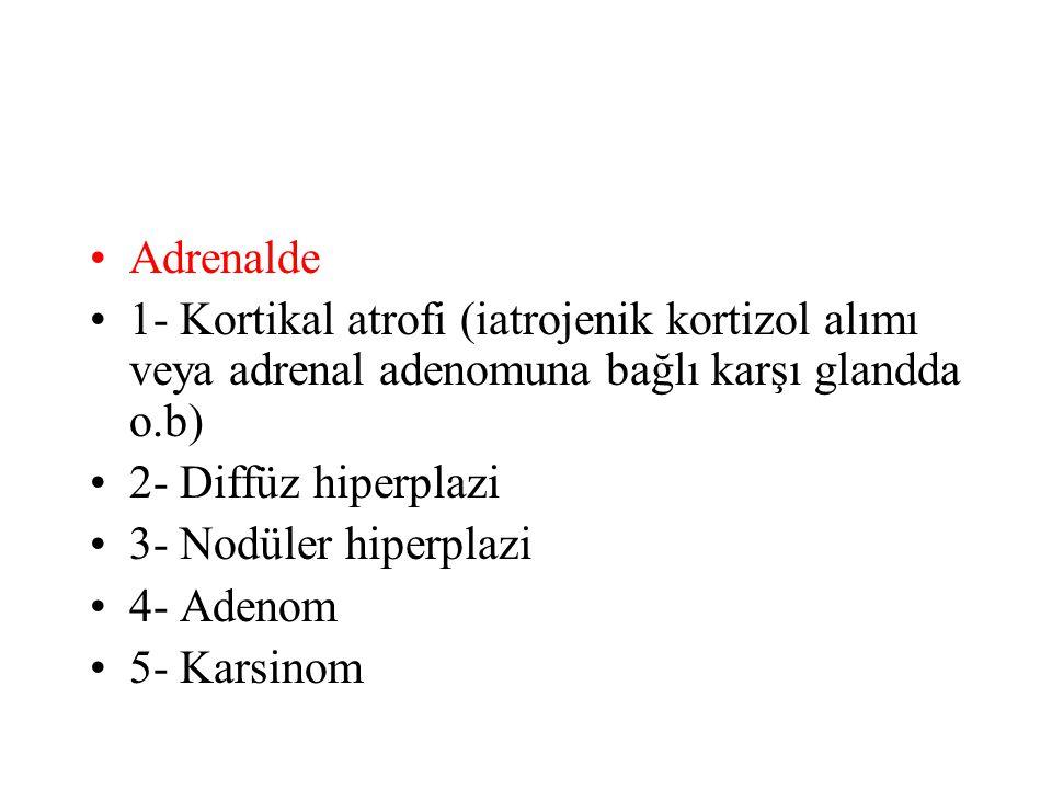 Adrenalde 1- Kortikal atrofi (iatrojenik kortizol alımı veya adrenal adenomuna bağlı karşı glandda o.b)