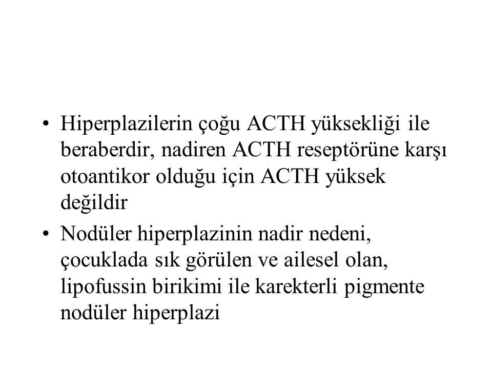 Hiperplazilerin çoğu ACTH yüksekliği ile beraberdir, nadiren ACTH reseptörüne karşı otoantikor olduğu için ACTH yüksek değildir