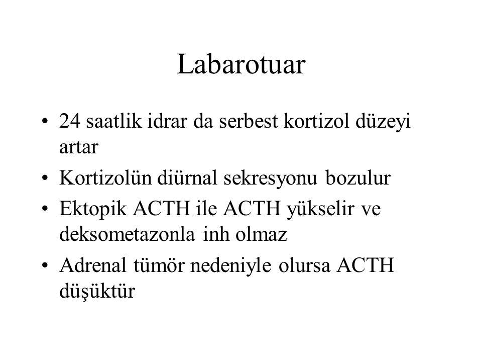 Labarotuar 24 saatlik idrar da serbest kortizol düzeyi artar