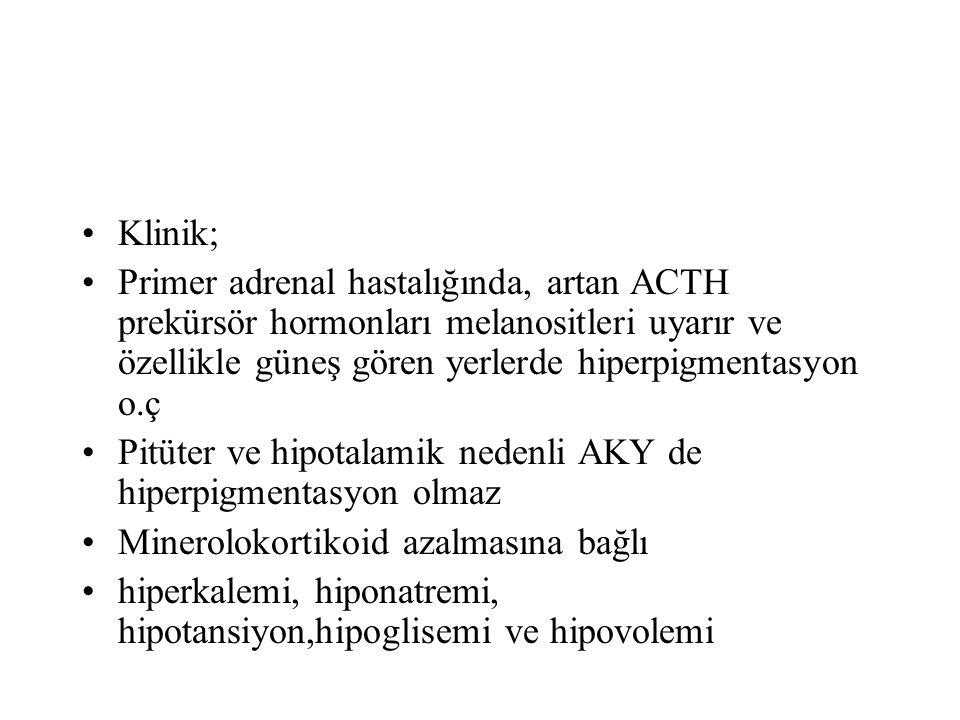 Klinik; Primer adrenal hastalığında, artan ACTH prekürsör hormonları melanositleri uyarır ve özellikle güneş gören yerlerde hiperpigmentasyon o.ç.