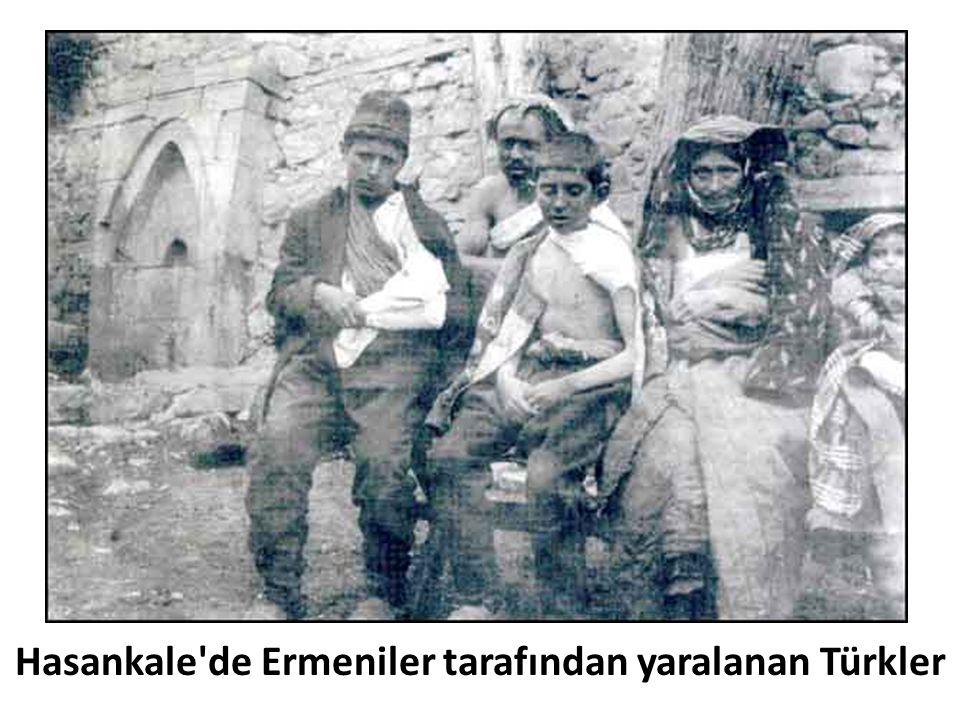 Hasankale de Ermeniler tarafından yaralanan Türkler