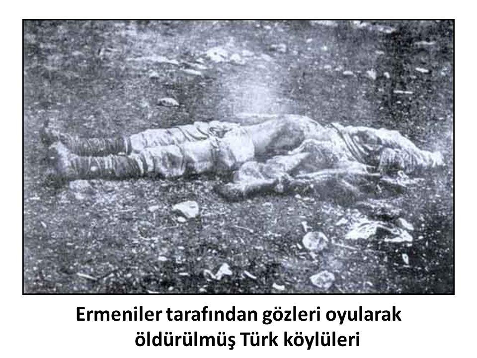 Ermeniler tarafından gözleri oyularak öldürülmüş Türk köylüleri