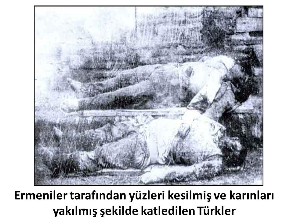 Ermeniler tarafından yüzleri kesilmiş ve karınları yakılmış şekilde katledilen Türkler
