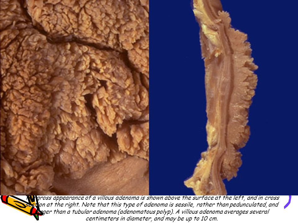 The gross appearance of a villous adenoma is shown above the surface at the left, and in cross section at the right.