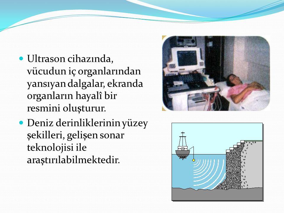 Ultrason cihazında, vücudun iç organlarından yansıyan dalgalar, ekranda organların hayalî bir resmini oluşturur.