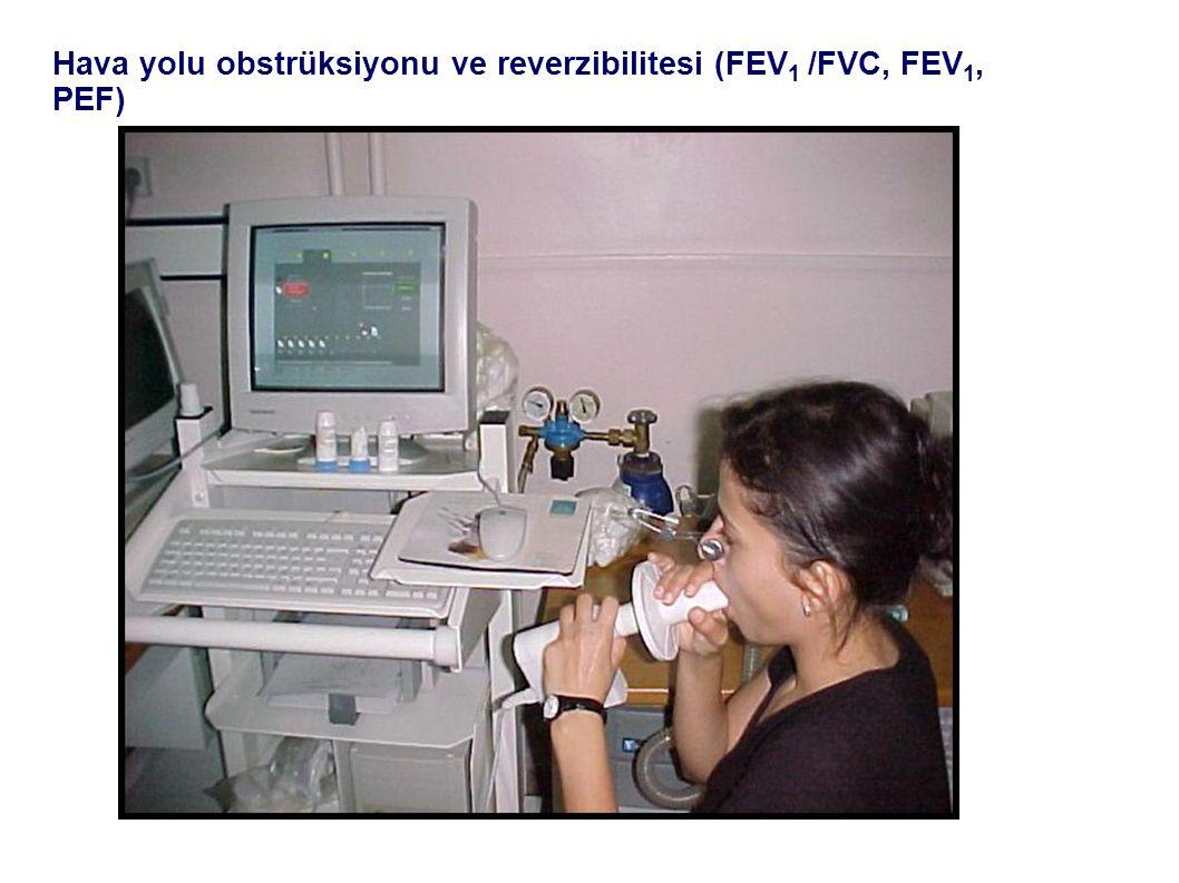 Hava yolu obstrüksiyonu ve reverzibilitesi (FEV1 /FVC, FEV1, PEF)