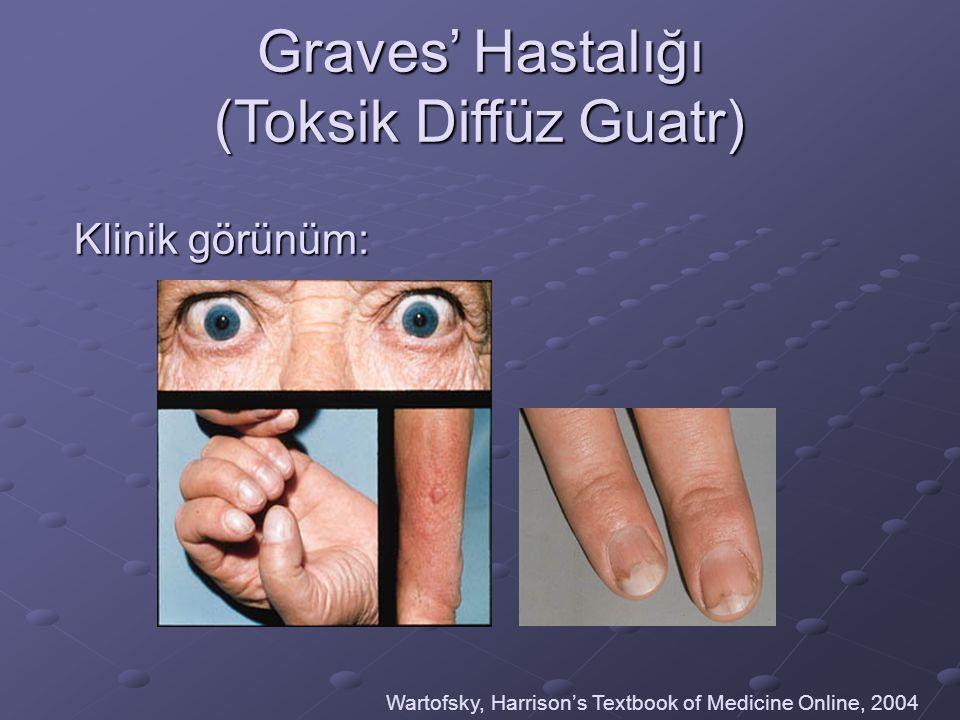 Graves' Hastalığı (Toksik Diffüz Guatr)
