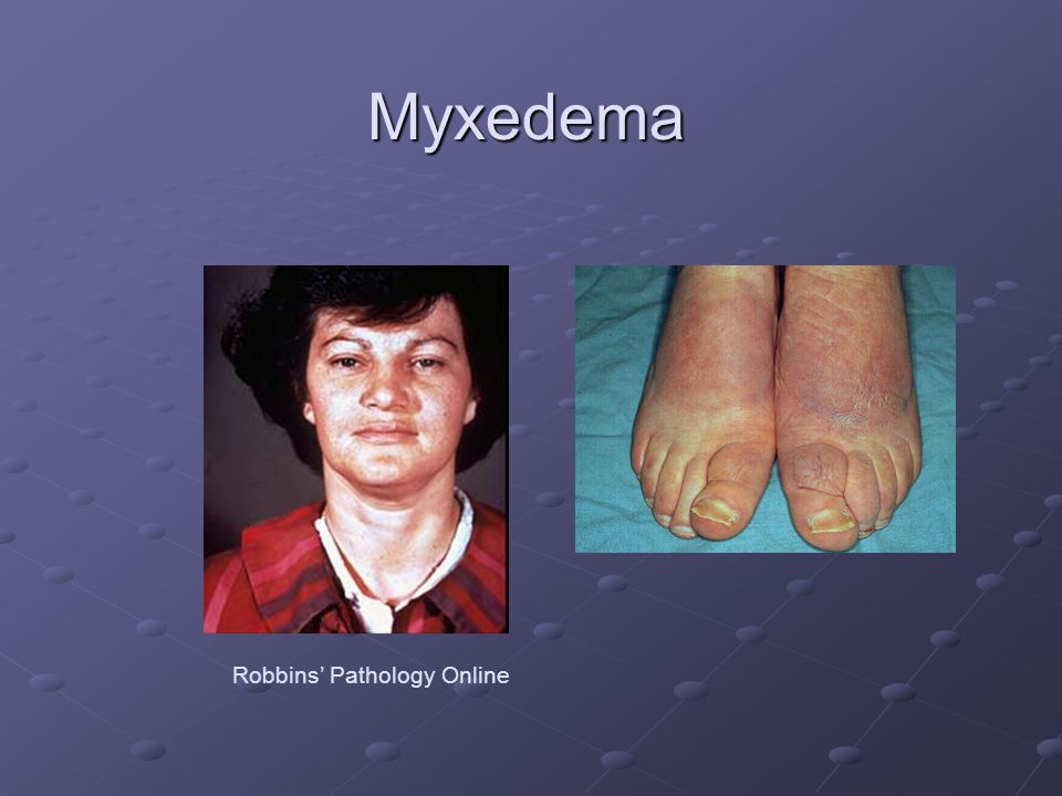 Myxedema Robbins' Pathology Online