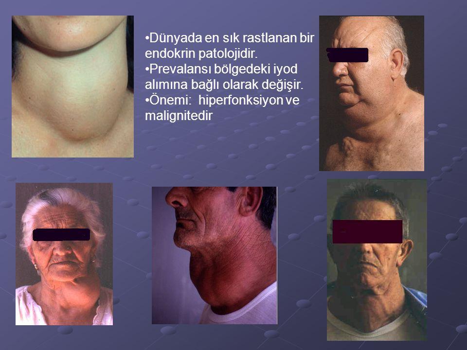 Dünyada en sık rastlanan bir endokrin patolojidir.
