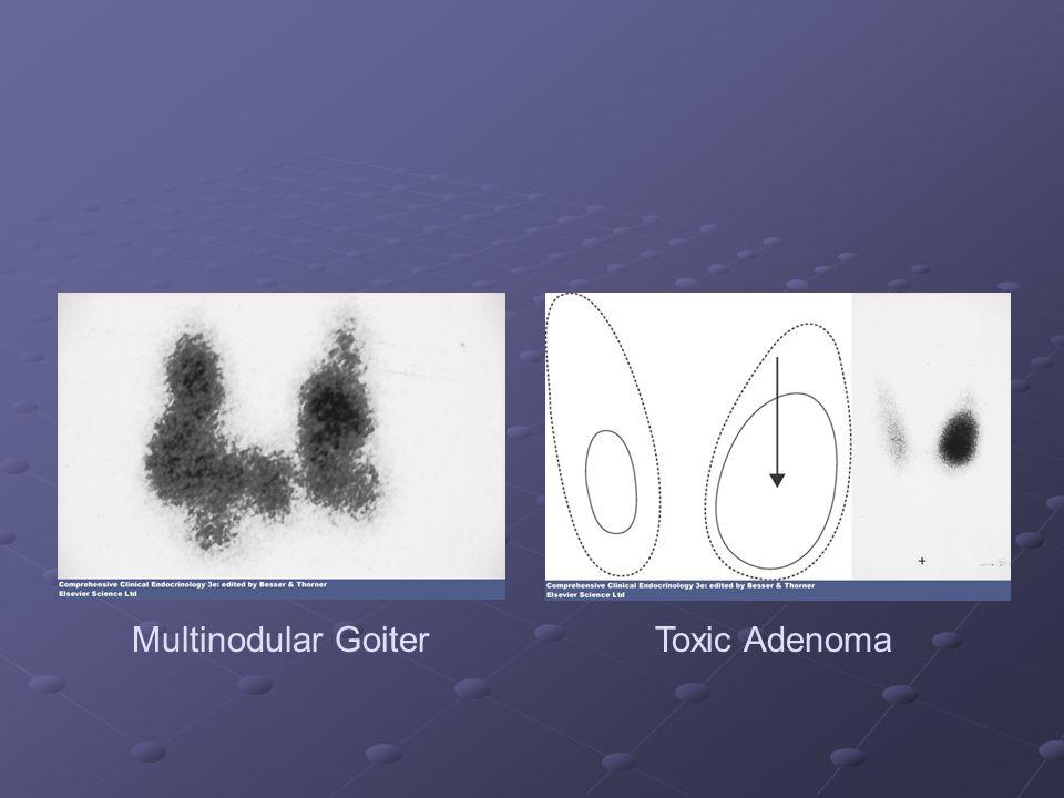 Multinodular Goiter Toxic Adenoma