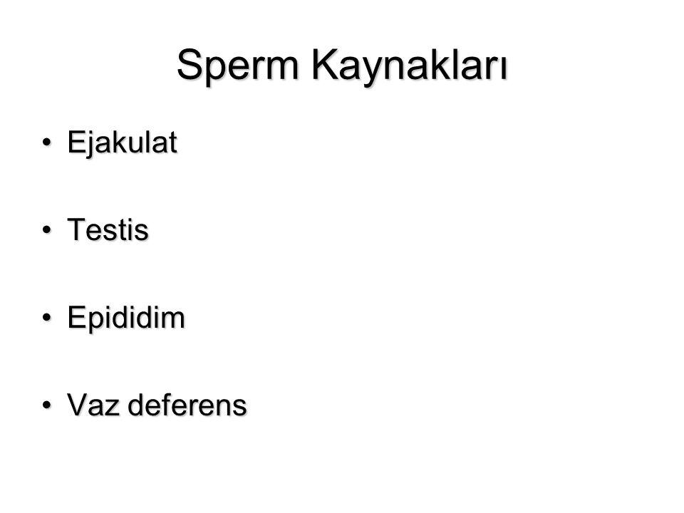 Sperm Kaynakları Ejakulat Testis Epididim Vaz deferens 2