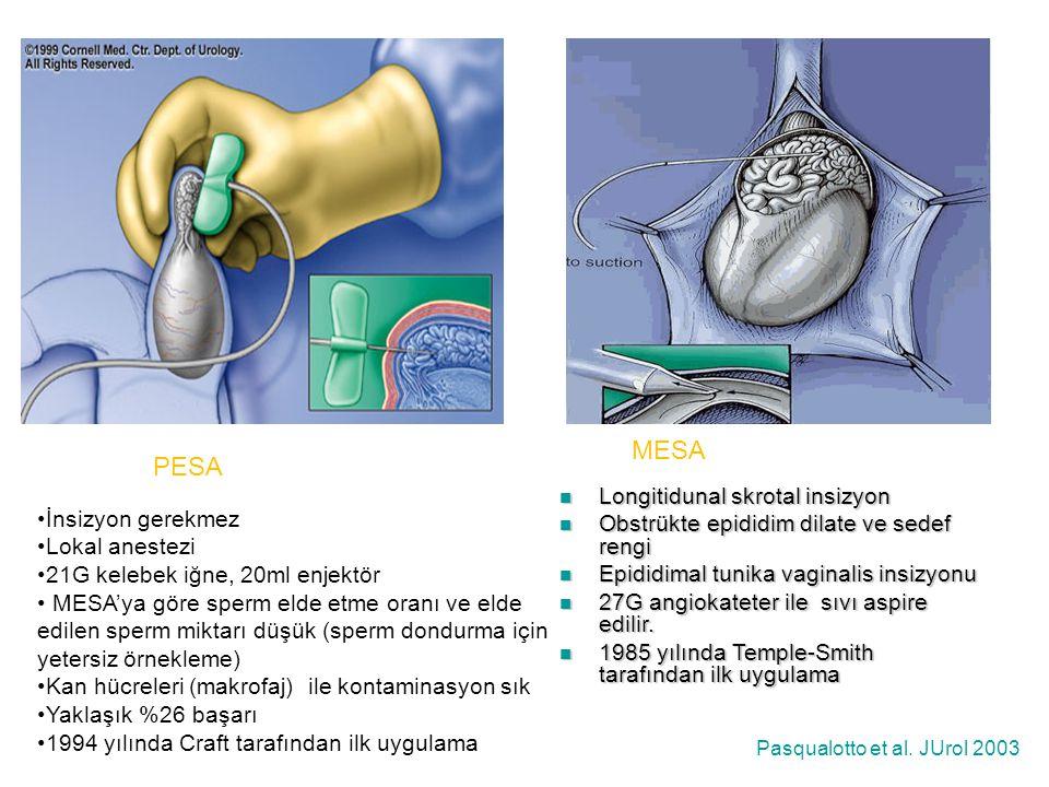 MESA PESA Longitidunal skrotal insizyon