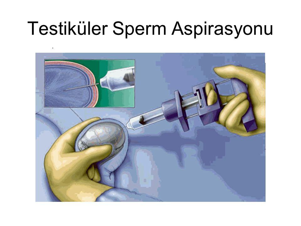 Testiküler Sperm Aspirasyonu