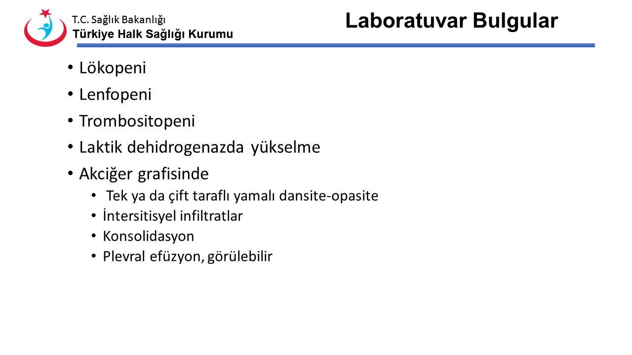 Laboratuvar Bulgular Lökopeni Lenfopeni Trombositopeni